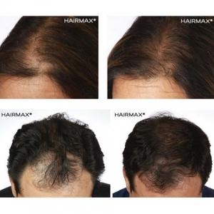 laser hair loss treatment new orleans