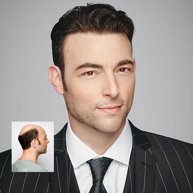 mens hair loss restoration new orleans
