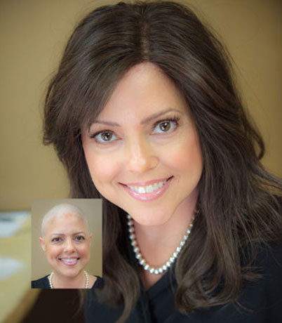 womens hair loss replacement systems new orleans